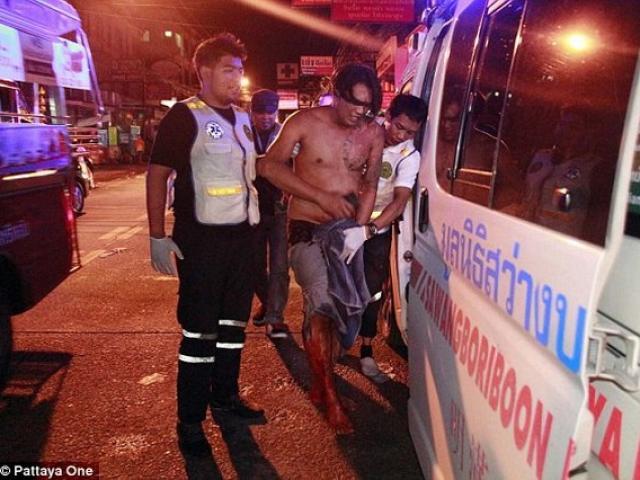 Thái Lan: Vợ cắt