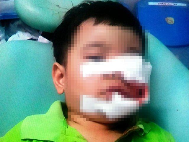Bé trai bị chó cắn nát mặt, phải khâu 200 mũi