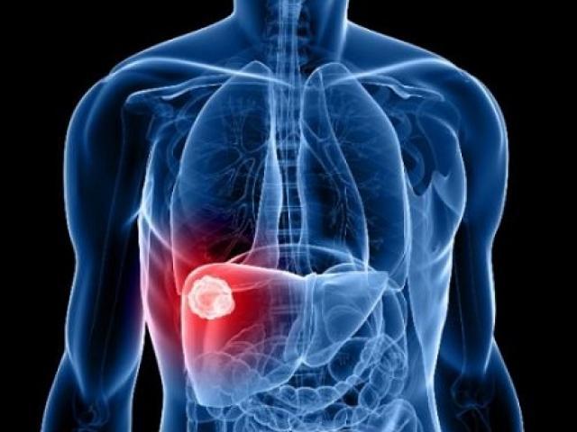 Bệnh viêm gan B có nguy hiểm không?