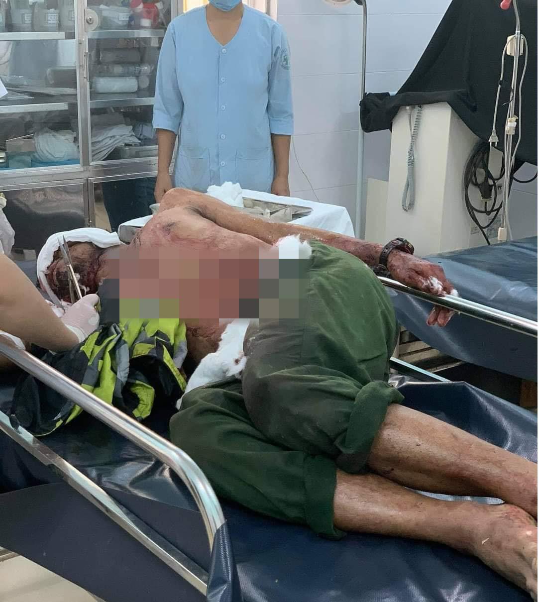 Vụ gấu tấn công người ở Quảng Nam: Nạn nhân chấn thương sọ não, còn thở máy - Ảnh 2.