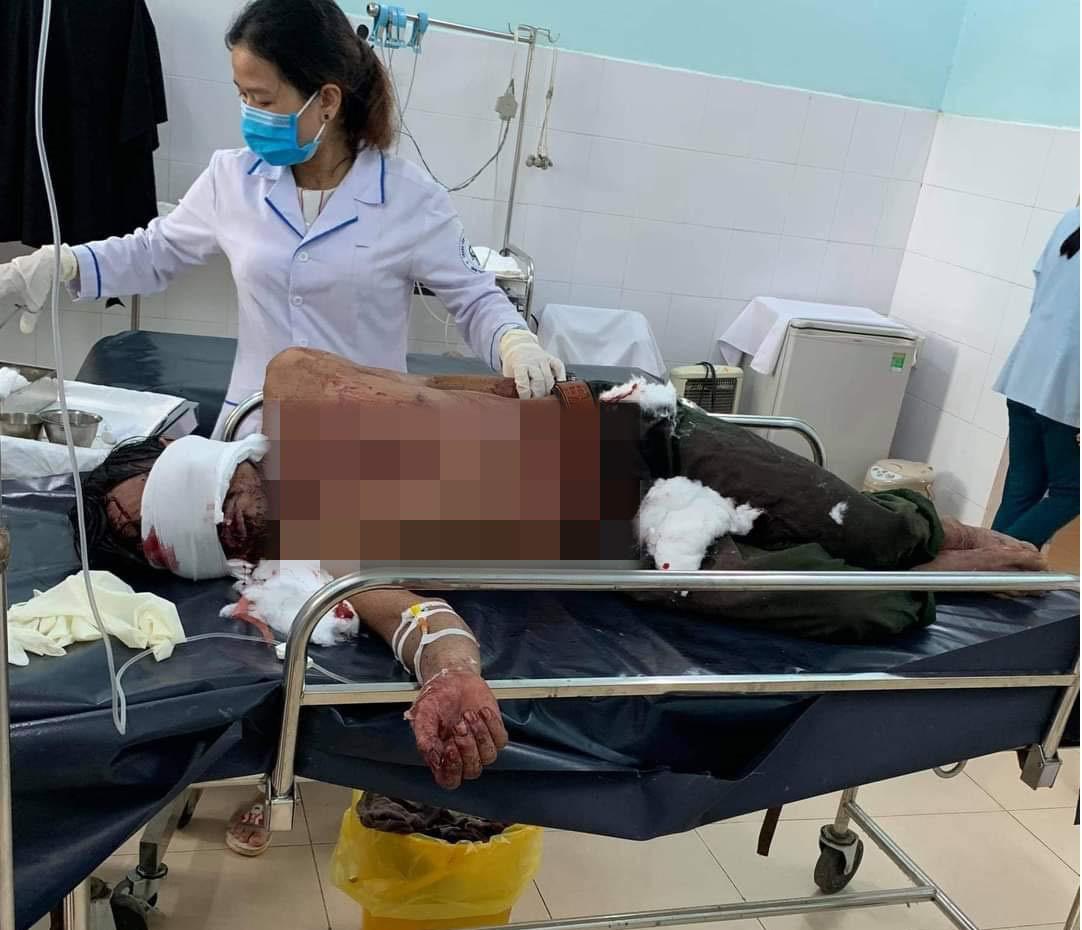 Vụ gấu tấn công người ở Quảng Nam: Nạn nhân chấn thương sọ não, còn thở máy - Ảnh 1.