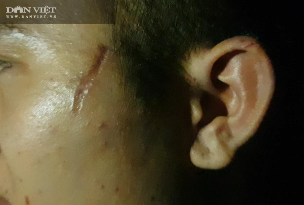 """Bắc Ninh: Nhân viên quán bánh xèo bị hành hung, tra tấn """"ác hơn con thú""""! - Ảnh 8."""