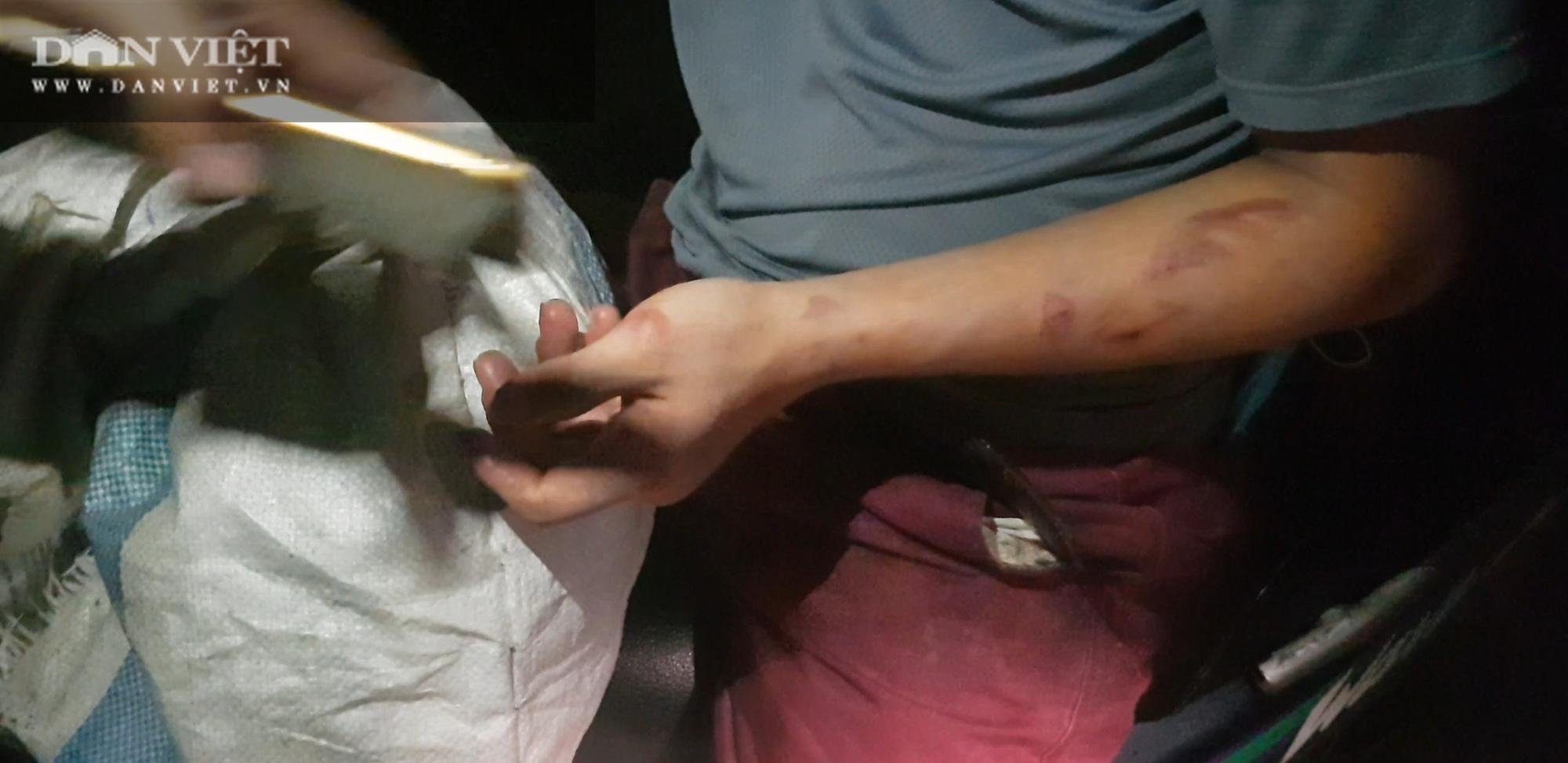 """Bắc Ninh: Nhân viên quán bánh xèo bị hành hung, tra tấn """"ác hơn con thú""""! - Ảnh 6."""