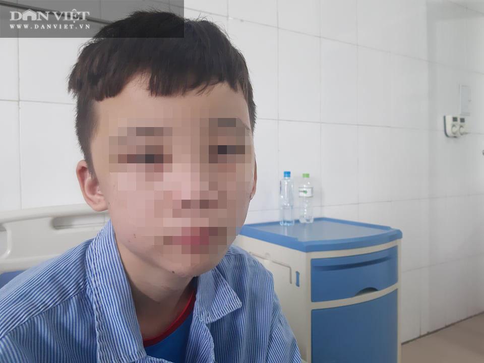 Vụ 2 nhân viên bị đánh ở Bắc Ninh: Đau xót hình ảnh khuôn mặt chằng chịt sẹo - Ảnh 2.