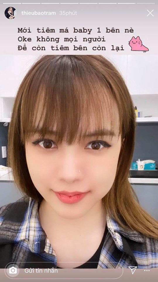 """""""Bạn gái tin đồn"""" Sơn Tùng MTP để lộ gương mặt sưng vù, nghi vấn can thiệp """"dao kéo"""" - Ảnh 1."""