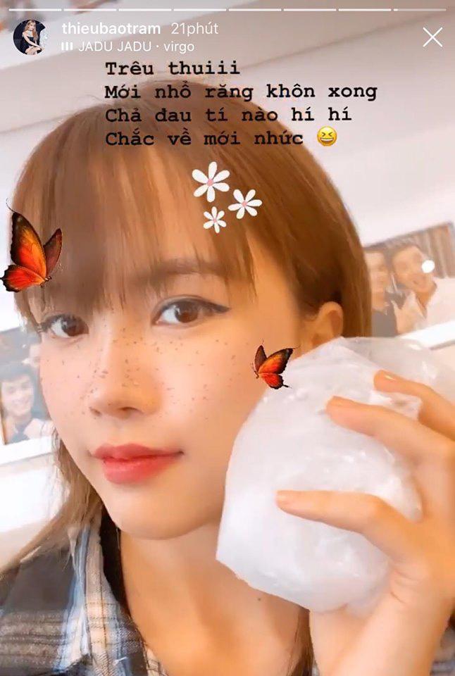 """""""Bạn gái tin đồn"""" Sơn Tùng MTP để lộ gương mặt sưng vù, nghi vấn can thiệp """"dao kéo"""" - Ảnh 2."""