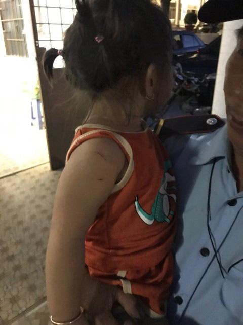 Nghẹt thở giải cứu bé gái 3 tuổi bị tên cướp dùng dao khống chế chở đi - Ảnh 4.