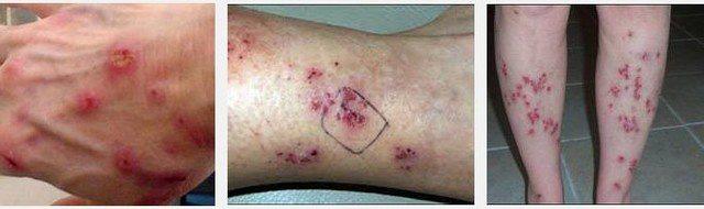"""7 căn bệnh bí ẩn nhất thế giới hiện đại khiến y học """"bó tay"""" - Ảnh 1."""