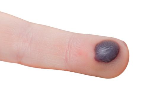"""7 căn bệnh bí ẩn nhất thế giới hiện đại khiến y học """"bó tay"""" - Ảnh 2."""