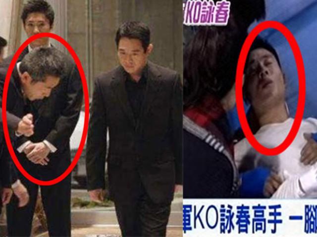 Vệ sỹ của Lý Liên Kiệt bị đánh gãy xương sườn.
