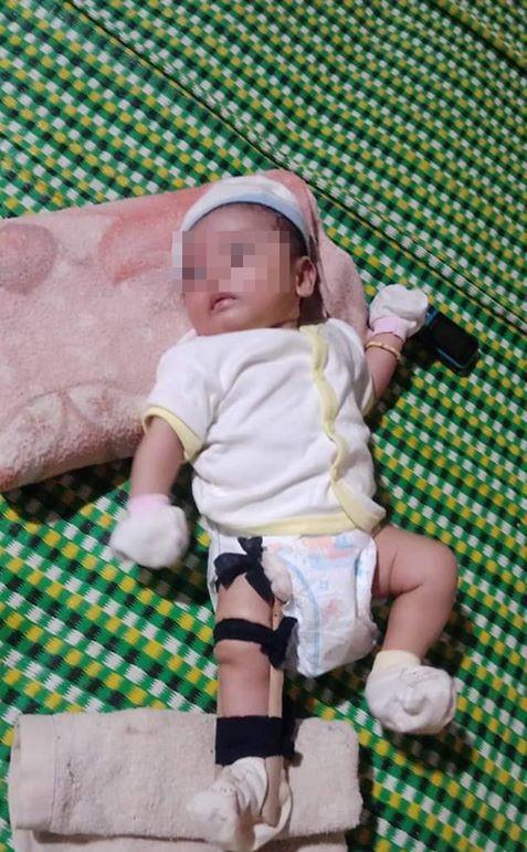 Sự thật nóng vụ cha đánh gãy chân con 2 tháng tuổi - Ảnh 1.
