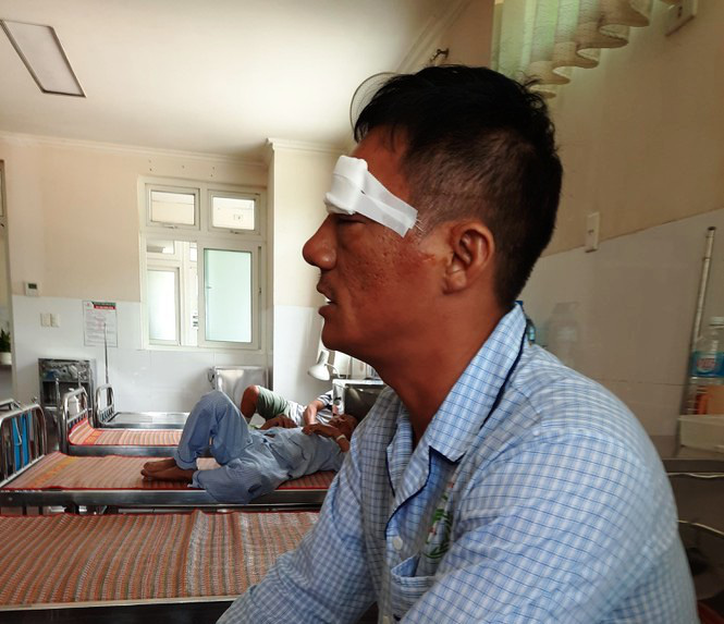 Nổ súng ở bến xe Quy Nhơn: Truy bắt hung thủ bịt kín khẩu trang, chĩa súng bắn người - Ảnh 1.