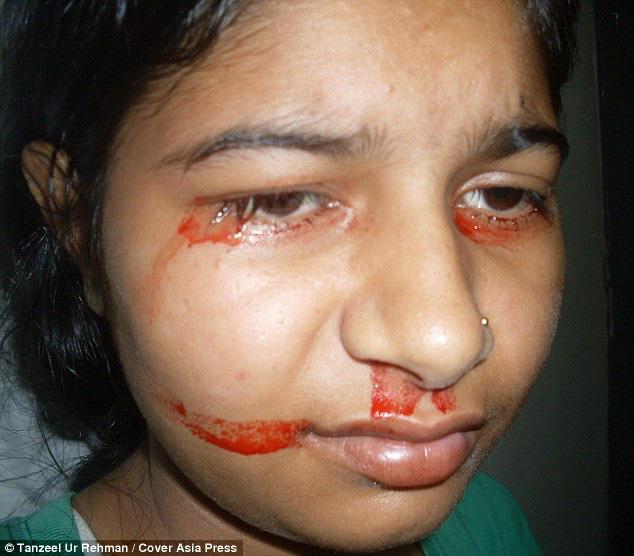 """Giải mã bí ẩn của haemolacria: """"Chứng bệnh"""" khiến những cô gái Ấn Độ khóc ra máu - Ảnh 3."""