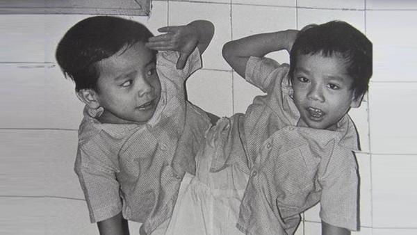 """Những ca phẫu thuật tách rời song sinh """"đình đám"""" của Việt Nam - Ảnh 5."""