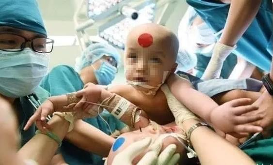 Những hình ảnh xúc động từ phòng mổ hai bé song sinh dính liền nhau - Ảnh 1.