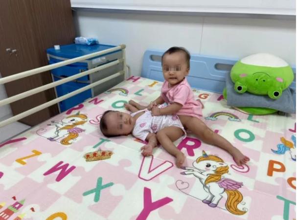 Những hình ảnh đầu tiên của ca phẫu thuật tách hai bé gái song sinh - Ảnh 1.