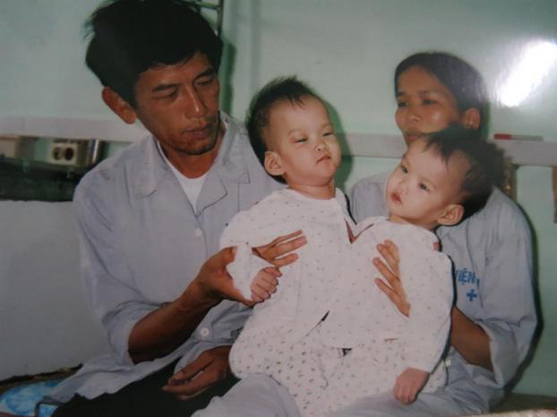 """Những ca phẫu thuật tách rời song sinh """"đình đám"""" của Việt Nam - Ảnh 4."""