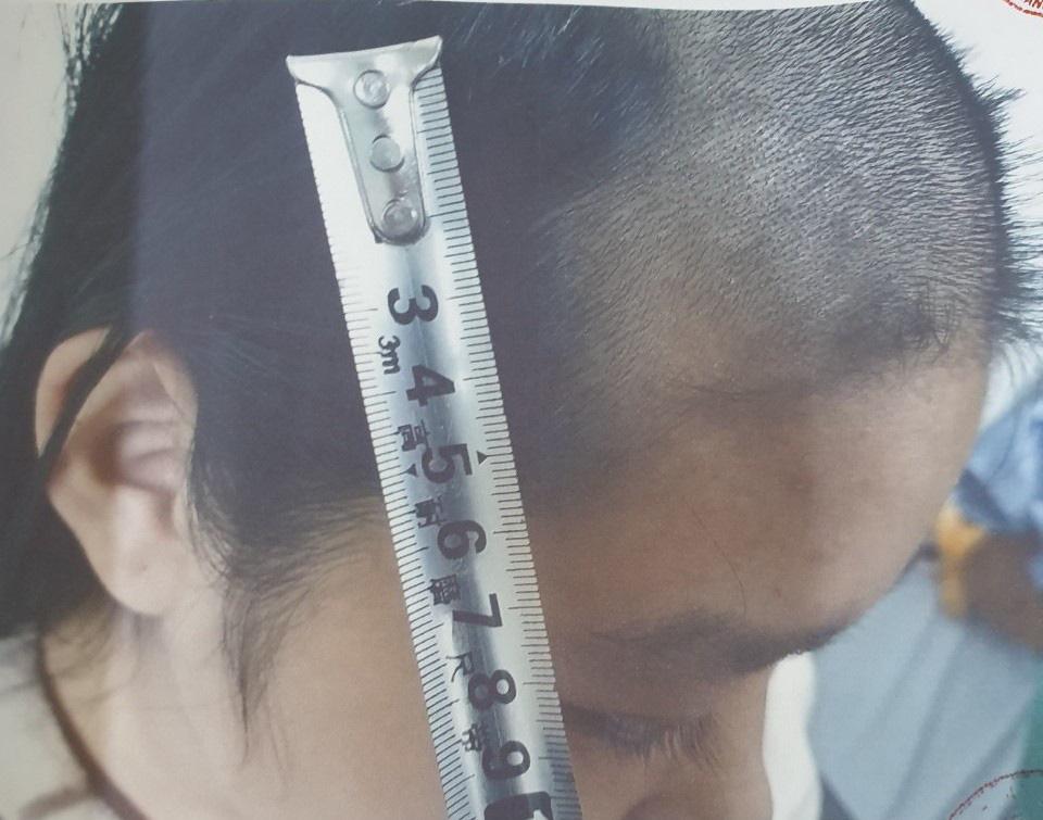 Bạo hành con gái 15 tuổi đến ngất xỉu, bố bị bắt tạm giam - Ảnh 2.