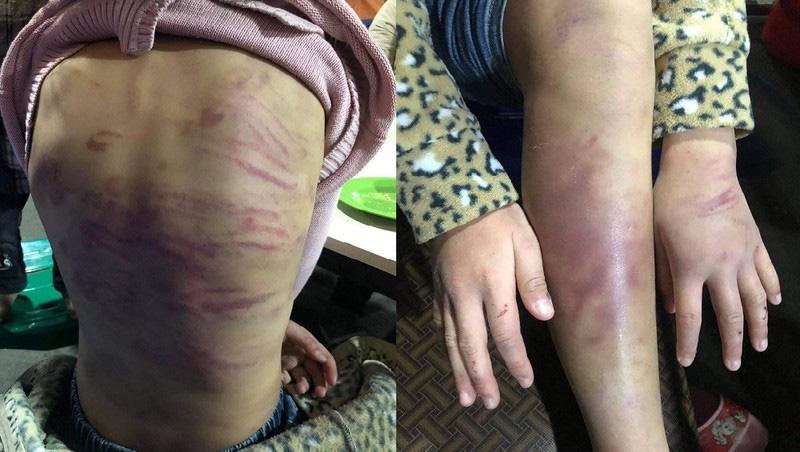 """Từ vụ bé gái 12 tuổi ở Hà Nội bị xâm hại: """"Lỗ hổng"""" pháp lý trong việc bảo vệ trẻ em - Ảnh 1."""