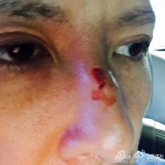 Mike Tyson đánh Chân Tử Đan... vỡ mũi, thâm tím mặt mày? - Ảnh 1.