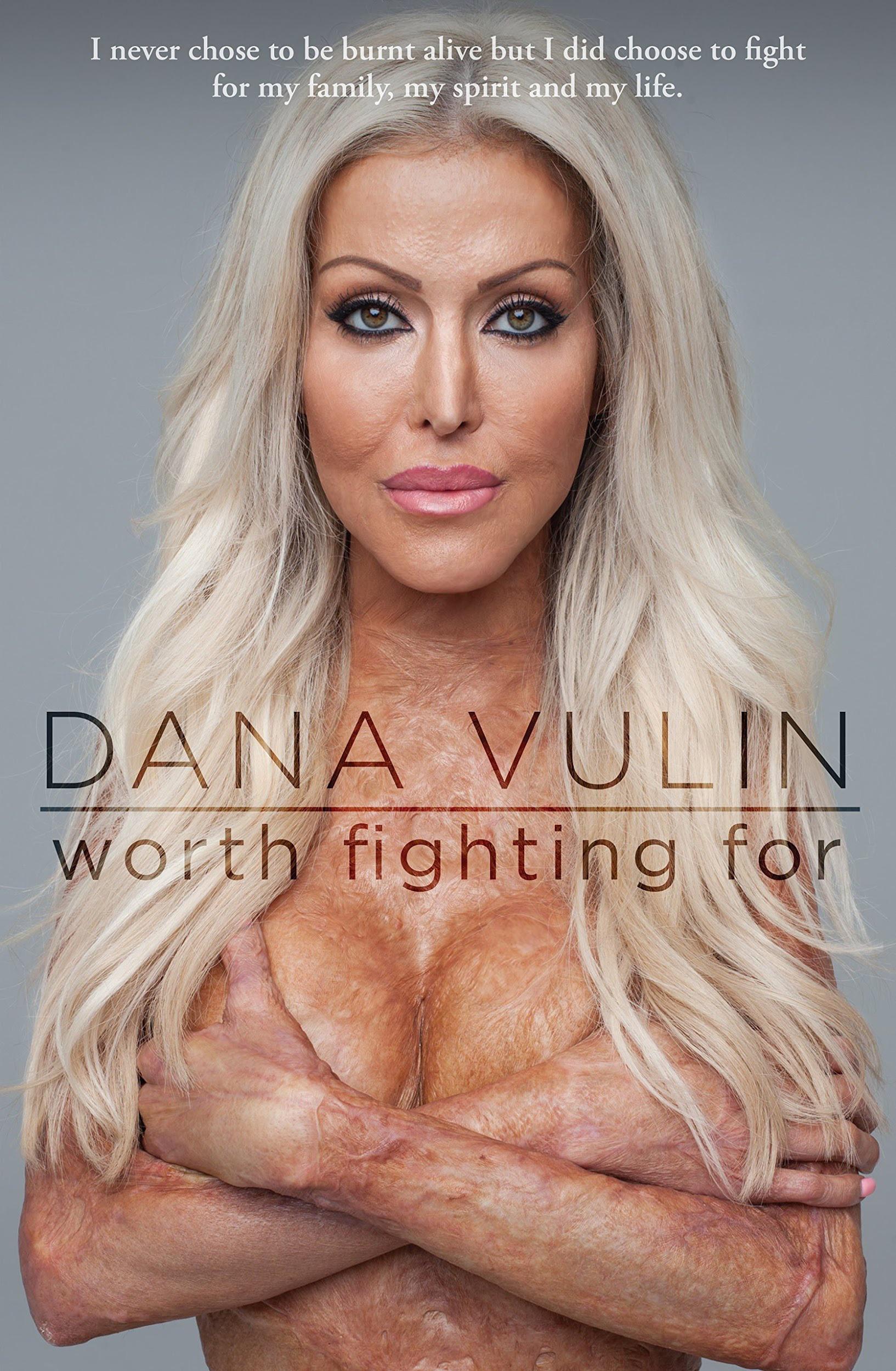 """Dana ghi lại toàn bộ hành trình tìm lại sự sống của mình trong cuốn sách có tên """"Worth fighting for"""" (tạm dịch: Đáng để đấu tranh). Toàn bộ lợi nhuận thu được từ việc bán sách đều được cô quyên góp cho quỹ từ thiện Burns Foundation để giúp đỡ những nạn nhân của tai nạn bỏng."""