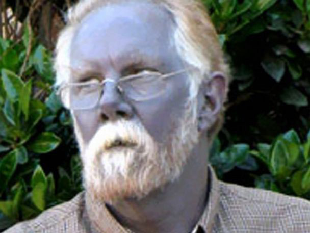 Kỳ bí gia tộc có da màu xanh như người ngoài hành tinh - Ảnh 1.