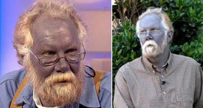 Kỳ bí gia tộc có da màu xanh như người ngoài hành tinh - Ảnh 2.