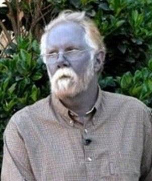 Kỳ bí gia tộc có da màu xanh như người ngoài hành tinh - Ảnh 6.