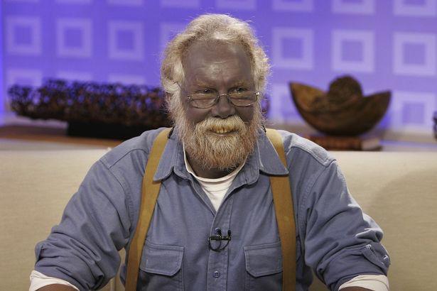 Kỳ bí gia tộc có da màu xanh như người ngoài hành tinh - Ảnh 7.