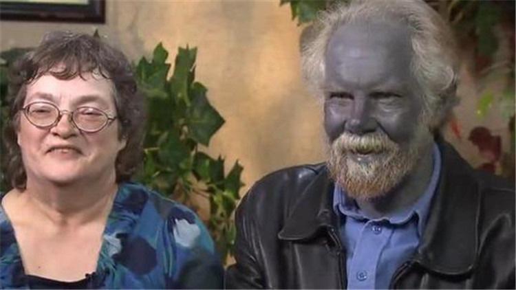 Kỳ bí gia tộc có da màu xanh như người ngoài hành tinh - Ảnh 9.