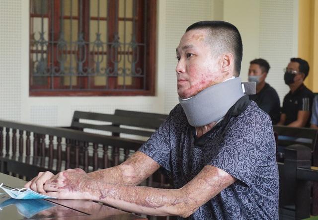 Nghệ An: Tẩm xăng đốt đồng nghiệp vì món nợ 2,5 triệu đồng, nam thanh niên lĩnh 16 năm tù   - Ảnh 1.