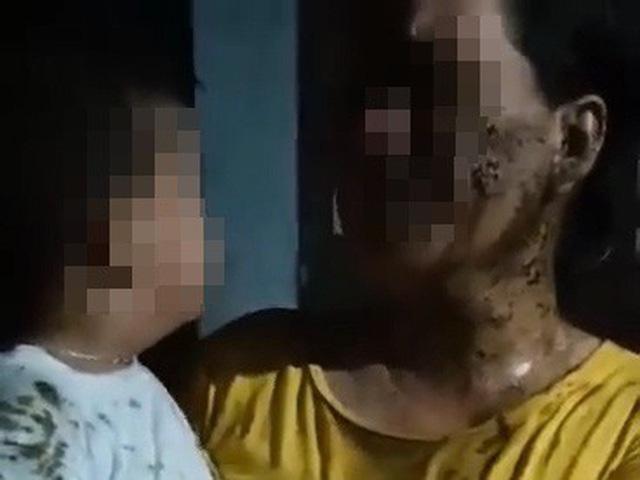 Phú Yên: Xem xét khởi tố vụ mẹ con bé trai 2 tuổi bị đổ phân bẩn khắp người - Ảnh 1.
