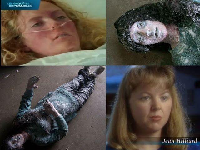 Kỳ tích cô gái 19 tuổi sống sót sau khi bị đóng băng ở nhiệt độ âm 30 độ C trong 6 tiếng - Ảnh 2.