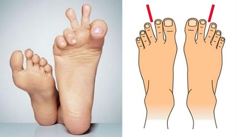 4 kiểu bàn chân cho thấy hậu vận giàu sang, cả đời hưởng phúc  - Ảnh 2.