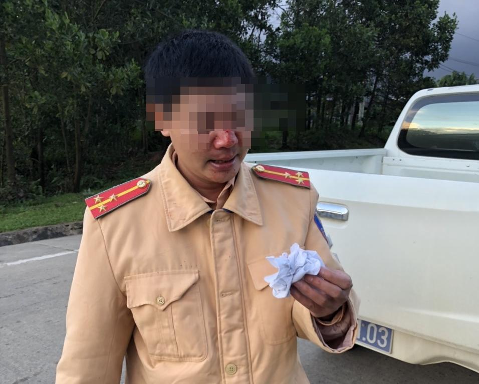 Bị yêu cầu khai báo y tế, thanh niên đánh 2 CSGT bị thương - Ảnh 1.