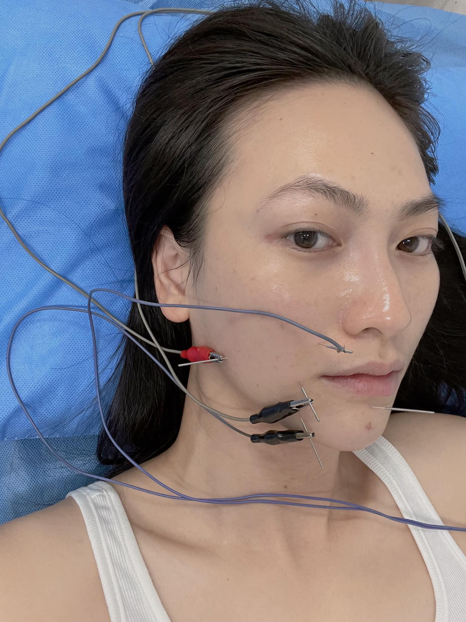 """Nữ diễn viên """"Chàng vợ của em"""" bị méo khung môi sau khi phẫu thuật chữa bệnh tuyến giáp - Ảnh 2."""