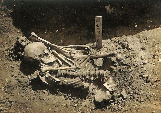 Phát hiện bất ngờ về người đàn ông bị cá mập cắn đứt lìa bàn tay cách đây 3.000 năm - Ảnh 2.