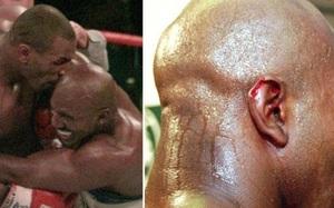 Mike Tyson cắn đứt tai Evander Holyfield: Điều gì xảy ra với mảnh tai?