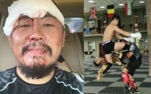 Từ Hiểu Đông bị võ sĩ nhẹ hơn 23 kg đánh gục, khâu 26 mũi: Tiết lộ bất ngờ