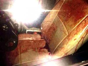 Bắt được nghi phạm đâm tài xế taxi nhiều nhát trong đêm