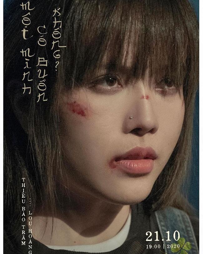 """""""Bạn gái tin đồn"""" Sơn Tùng MTP gây hoang mang khi để lộ gương mặt nhiều vết xước - Ảnh 1."""