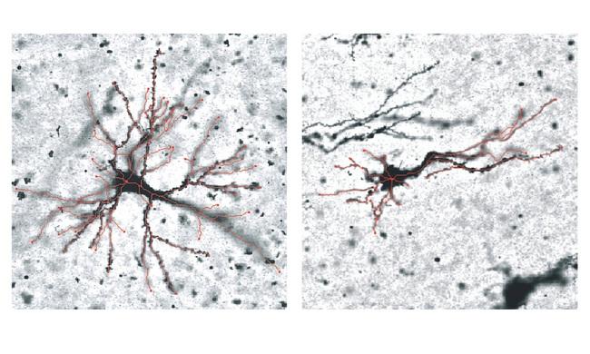 Nếp nhăn trên não hình thành như thế nào? - Ảnh 1.