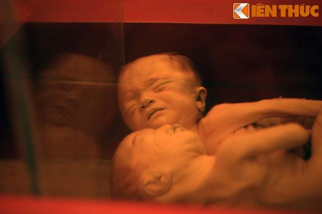 Cảnh quặn lòng trong bảo tàng chiến tranh nổi tiếng Việt Nam - Ảnh 8.
