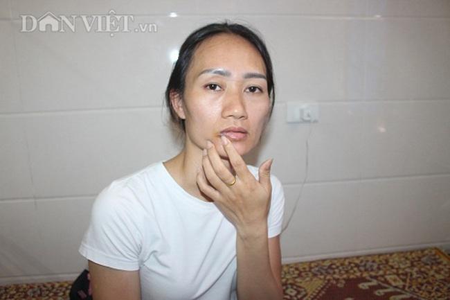 Hà Tĩnh: Nữ nhân viên Công ty thủy lợi đi điều tiết nước chống hạn bị đánh nhập viện - Ảnh 1.