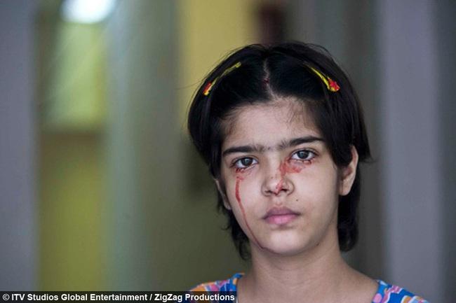 """Giải mã bí ẩn của haemolacria: """"Chứng bệnh"""" khiến những cô gái Ấn Độ khóc ra máu - Ảnh 2."""