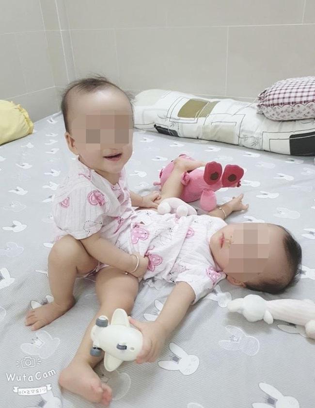 Ngày mai sẽ phẫu thuật tách rời 2 bé gái dính liền vùng bụng - Ảnh 2.