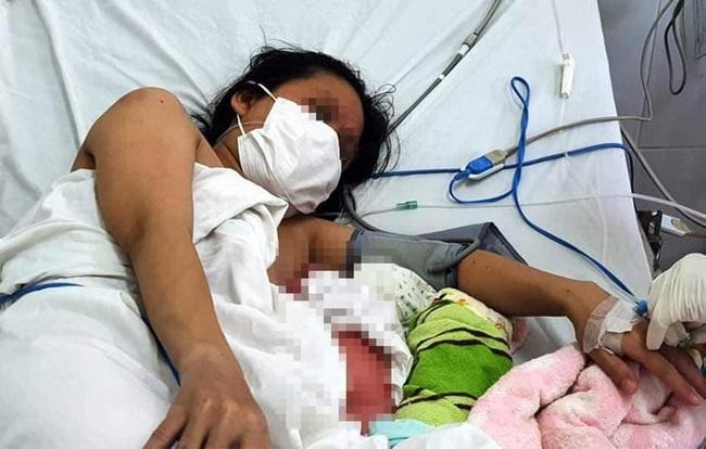 Bác sĩ kể lại giây phút mổ bắt con cho sản phụ nhiễm Covid-19 ở Đà Nẵng - Ảnh 1.