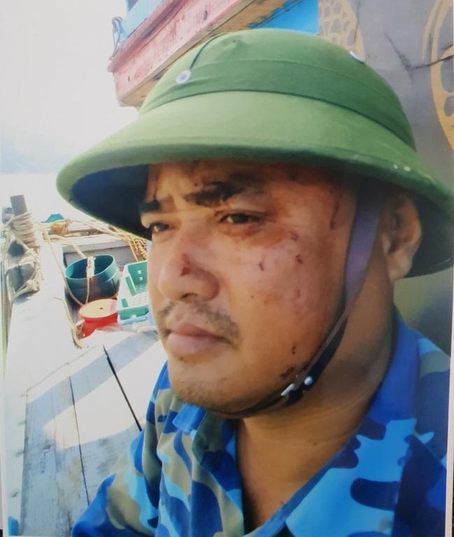 Nóng: Truy vết tàu cá vi phạm, thuyền viên dùng dao chém trọng thương cán bộ kiểm ngư Nghệ An - Ảnh 1.