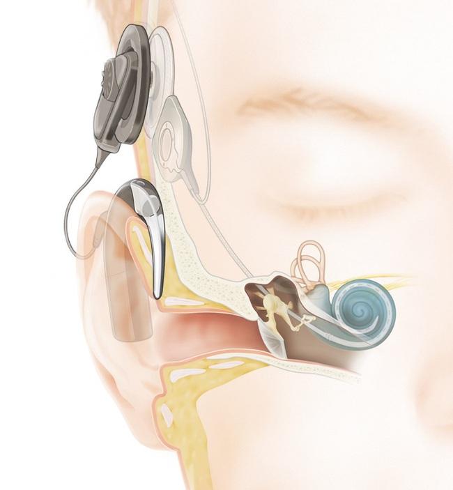 1,6 tỷ đồng giúp trẻ em khiếm thính khôi phục khả năng nghe - Ảnh 1.