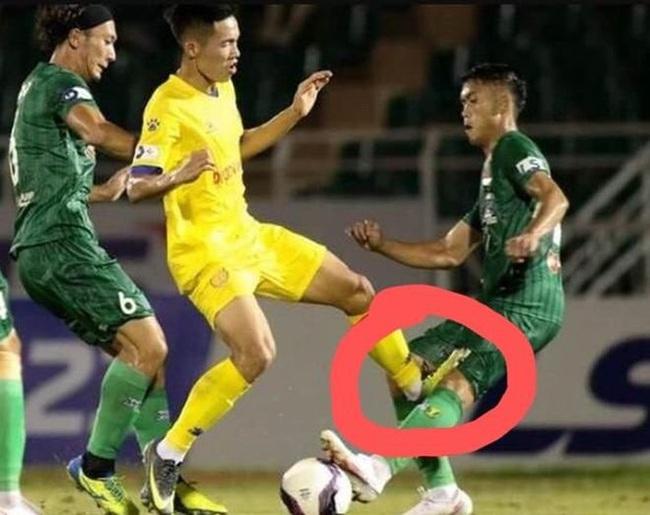 Cầu thủ Sài Gòn FC bị đạp móp đầu gối, người tung chân vô tội?!  - Ảnh 2.